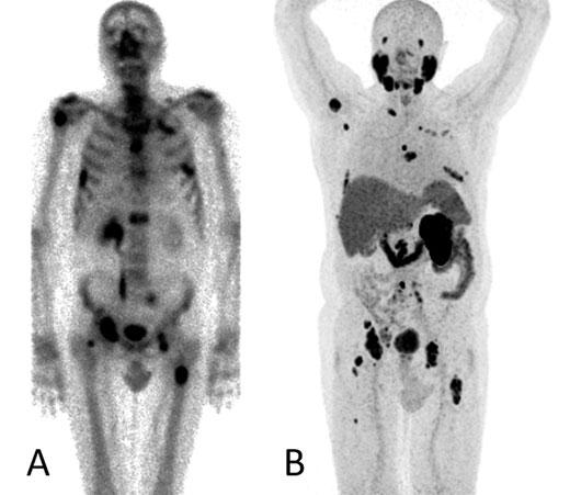 ossäre metastasen beim prostatakarzinom
